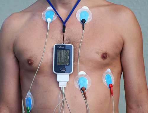 El fàrmac més usual contra el colesterol redueix el risc d'infart a qualsevol edat